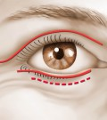 blepharoplastie